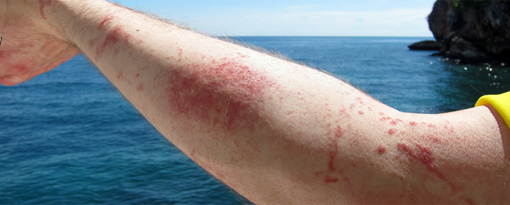 Box Jellyfish sting in Hawaii